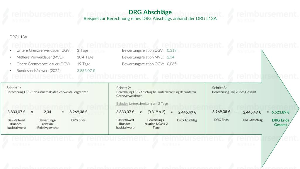 DRG Abschläge - Beispielberechnung anhand DRG L13A